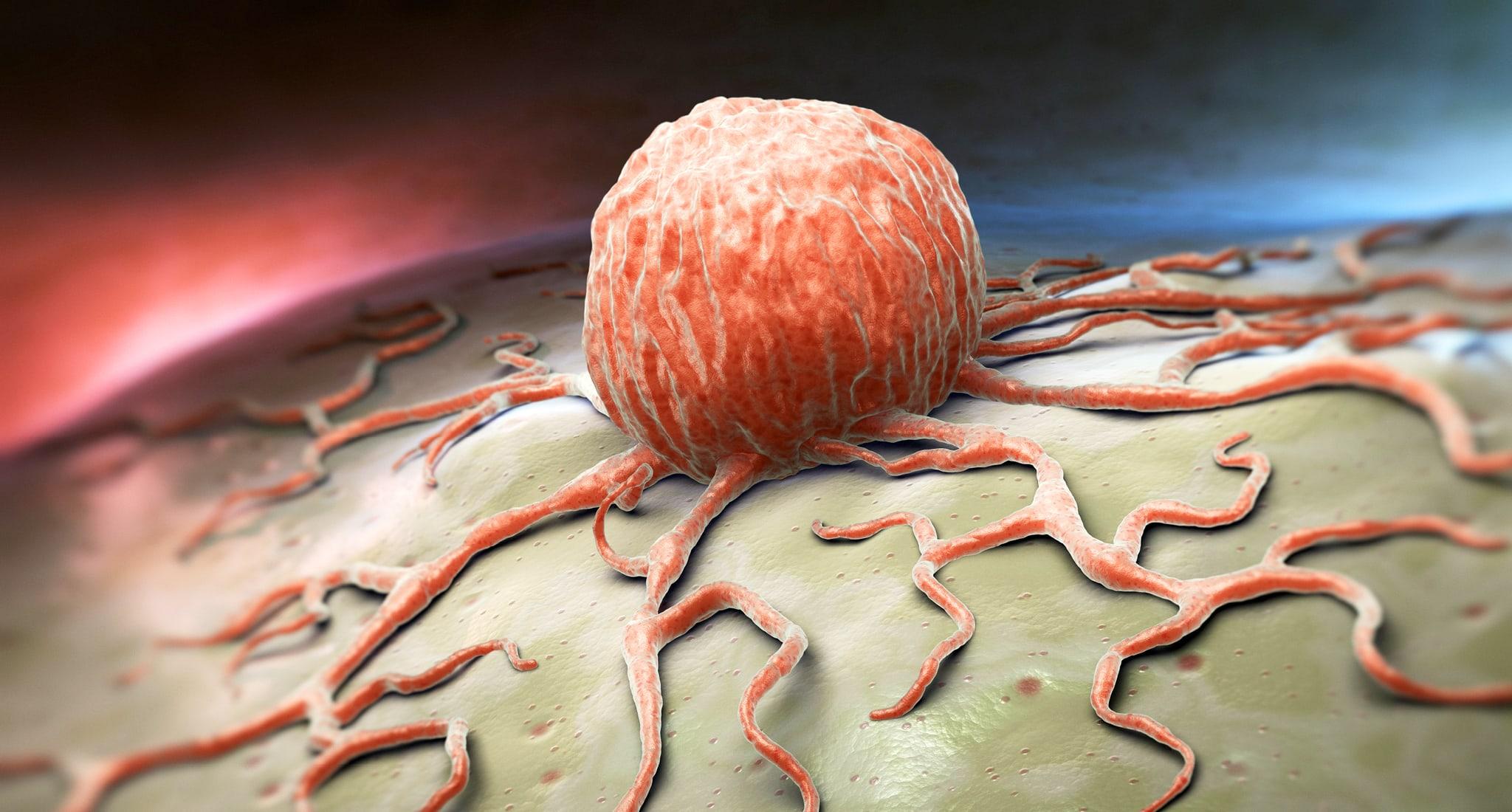 Krebsrisiko durch Übergewicht